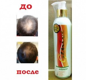 Кондиционер Genive против выпадения волос