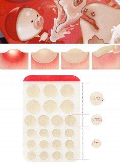 Вся  Корея - косметика для твоей красоты. Цены рухнули!!! (0 — От прыщей.Удаление черных точек — Для лица