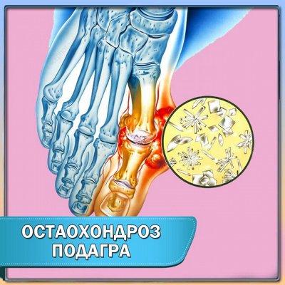 Коррекция фигуры! Пояса, обертывание, скрабы! — Бальзам для тела при отложении солей (остеохондроз, подагра) — Кремы для тела, рук и ног