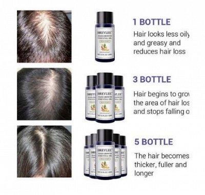 👍Шикарная LANBENA и BREYLEE. Работает 100% — BREYLEE Средство против выпадения волос и для роста волос — Эссенции и флюиды