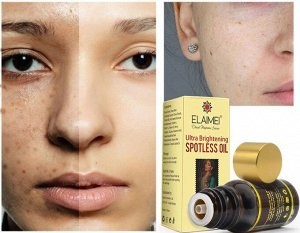 Осветляющее масло с антивозрастным эффектом ELAIMEI, 10 мл