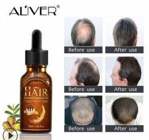 Сыворотка для роста волос ALIVER, 30 мл