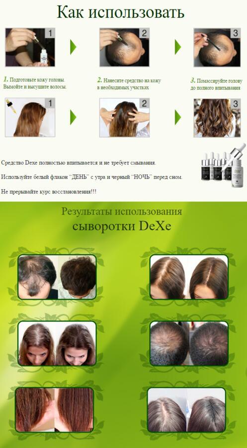 Сыворотка для волос DeXe Anti-Hair Loss 30дней Китай.